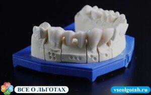 Льготы на протезирование зубов в России